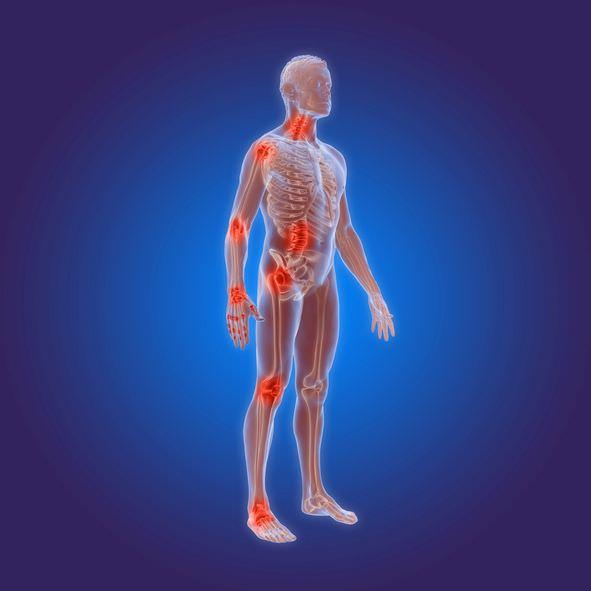 Rheuma, Rheumatoide Arthritis – chronische Erkrankungen des Immunsystems