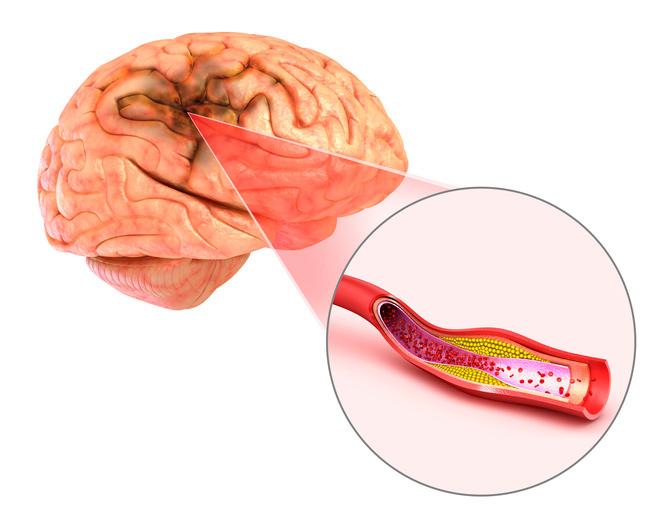 #Herzinfarkt und #Schlaganfall –  Risiko durch #Gürtelrose (#Herpes #Zoster #Virus)?