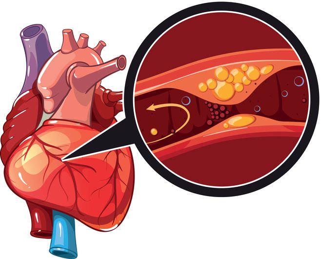 #Arteriosklerose Ursprung für #Herzinfarkt und #Schlaganfall – Schützen Sie Ihre Gefäße!