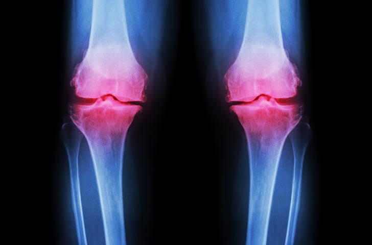 Arthrose Folge von chronischem Knorpelabbau eilpraktikerin in Rosenheim
