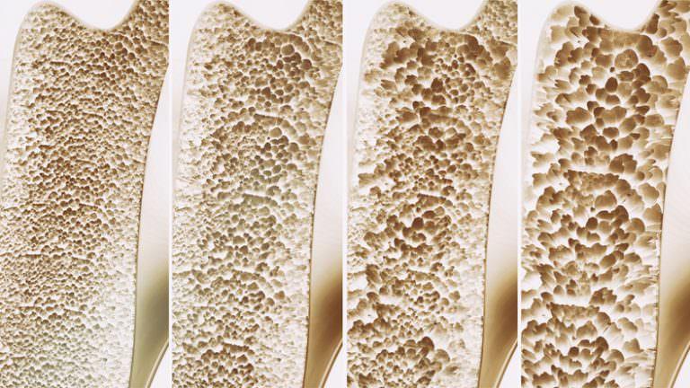 Osteoporose, wenn die Knochenstruktur chronisch krank ist.