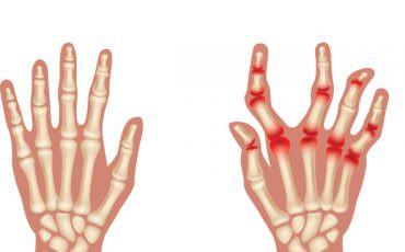 Rheuma und rheumatische Erkrankungen Stoffwechsel Rosenheim